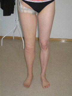 lower limbs prosthesis